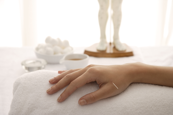 Acupuncture for Your Physical Wellbeing   Conscious Wellbeing in Manly & Sydney