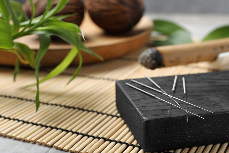 Wellbeing Acupuncture for Mental & Emotional Wellbeing Acupuncture | Conscious Wellbeing